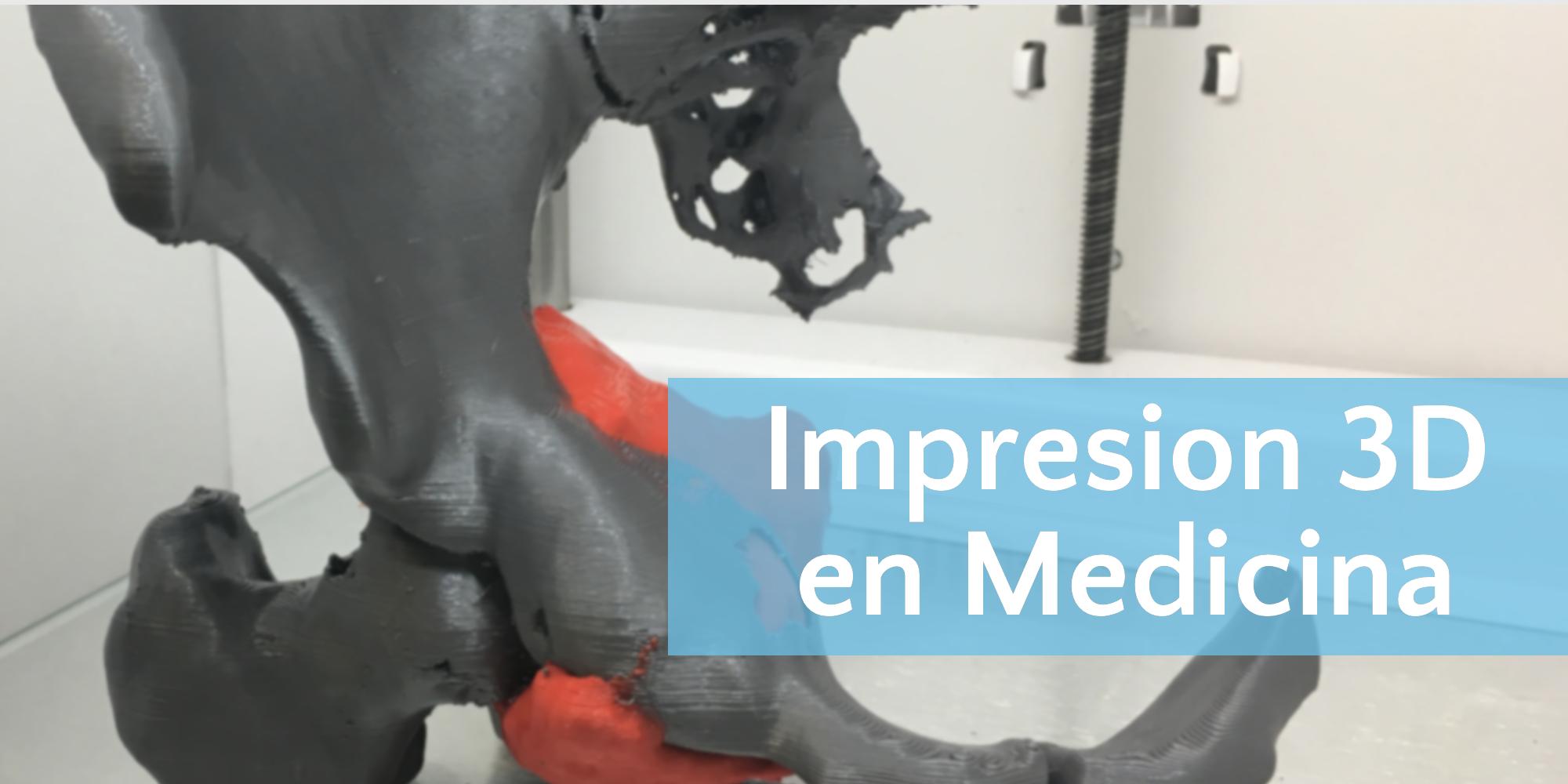 Impresión 3D en Medicina