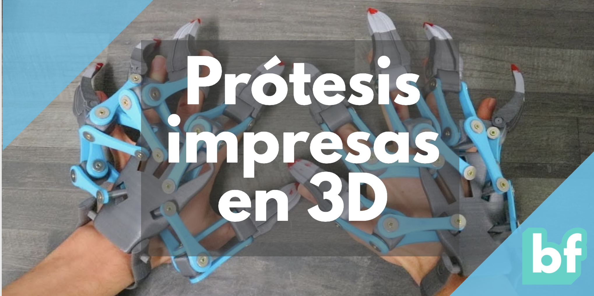 Prótesis impresión 3D