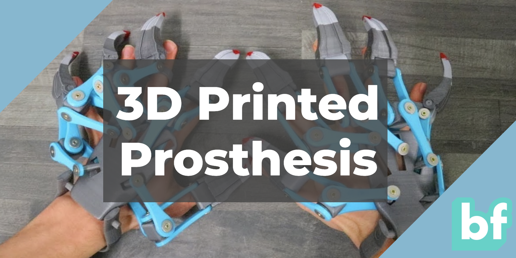3D printed prosthesis